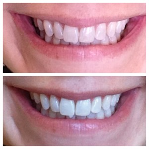 That time I judged myself: Teeth whitening